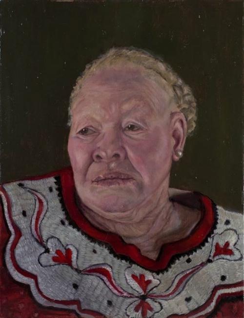 Hoog-Veronique-Condition-Albinism.jpg