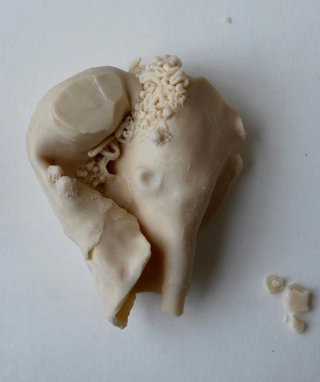 Hatch-Evie-May-Leiomysarcoma-of-the-Uterus.jpg