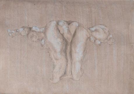 Hatch-Evie-May-Small-intramural-leiomyoma-in-bifid-(septate)-Uterus.jpg